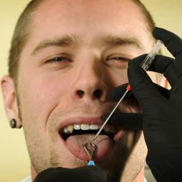 what dentists think about tongue piercing